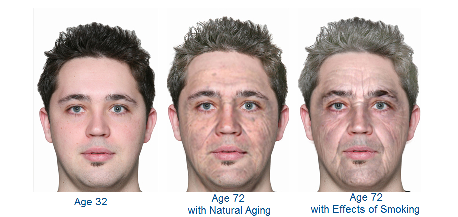 face-aging18